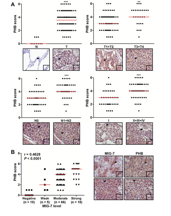 The levels of MIG-7 protein and plasma membrane-associated PHB positively correlates with advanced stages of cancers in human lung tumor tissues.