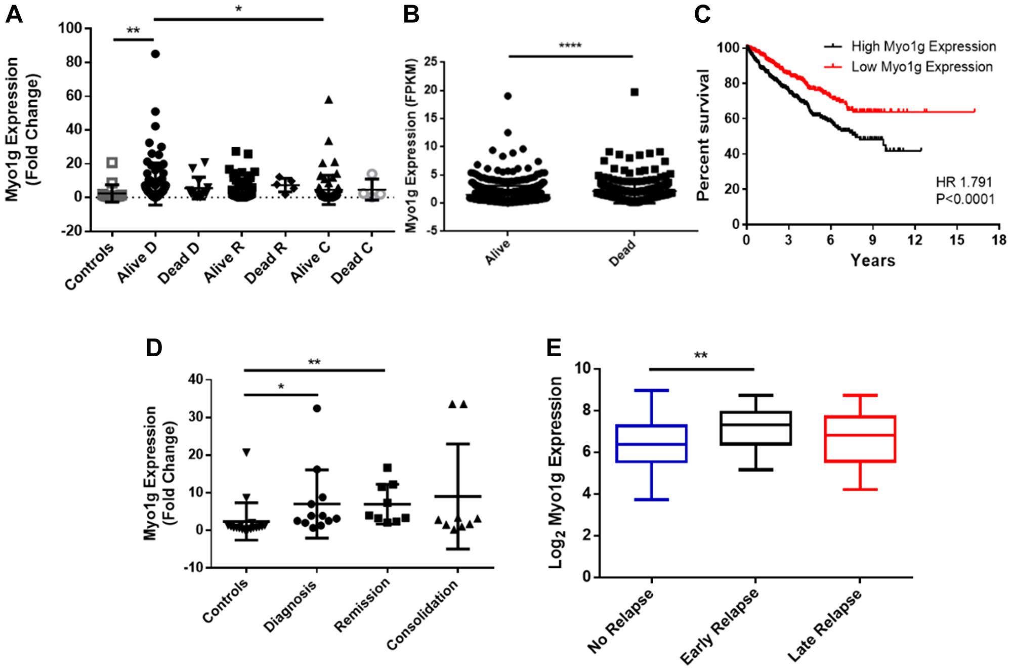 Myo1g is a potential biomarker in pediatric acute lymphoblastic leukemia.
