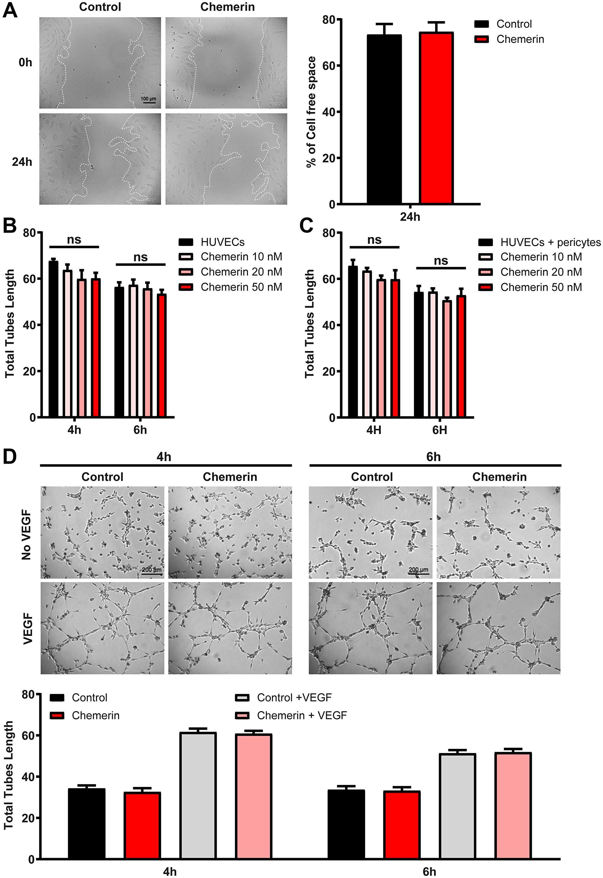Effect of chemerin on ex vivo angiogenesis assays.
