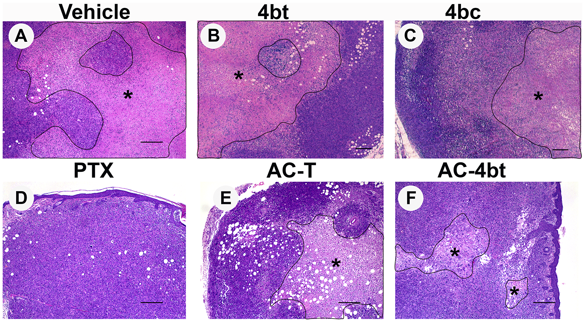 Histopathological analysis of tumor sections upon monotherapy or drug combination treatments.