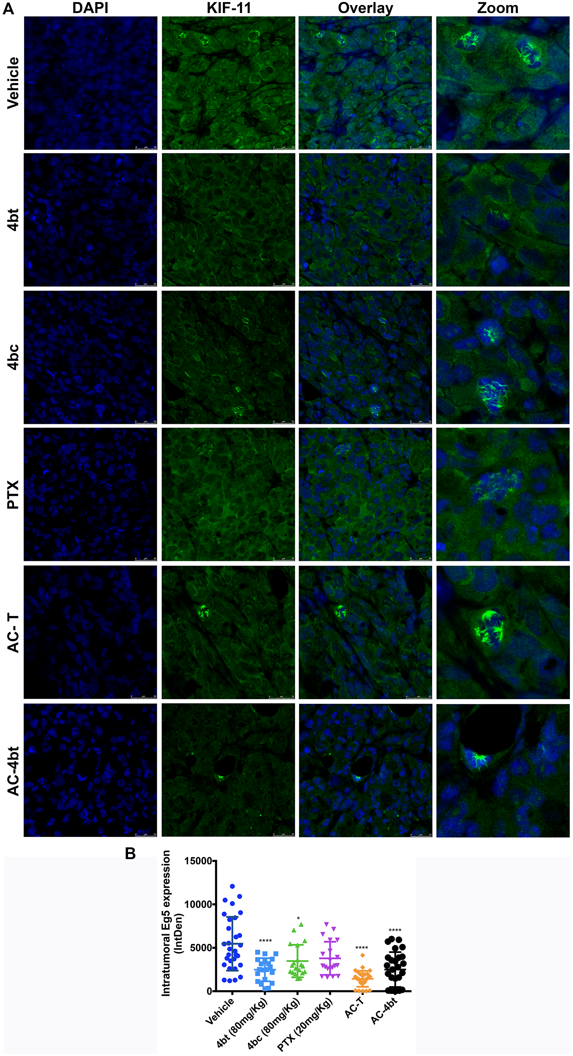 Analysis of intratumoral KIF11 expression.
