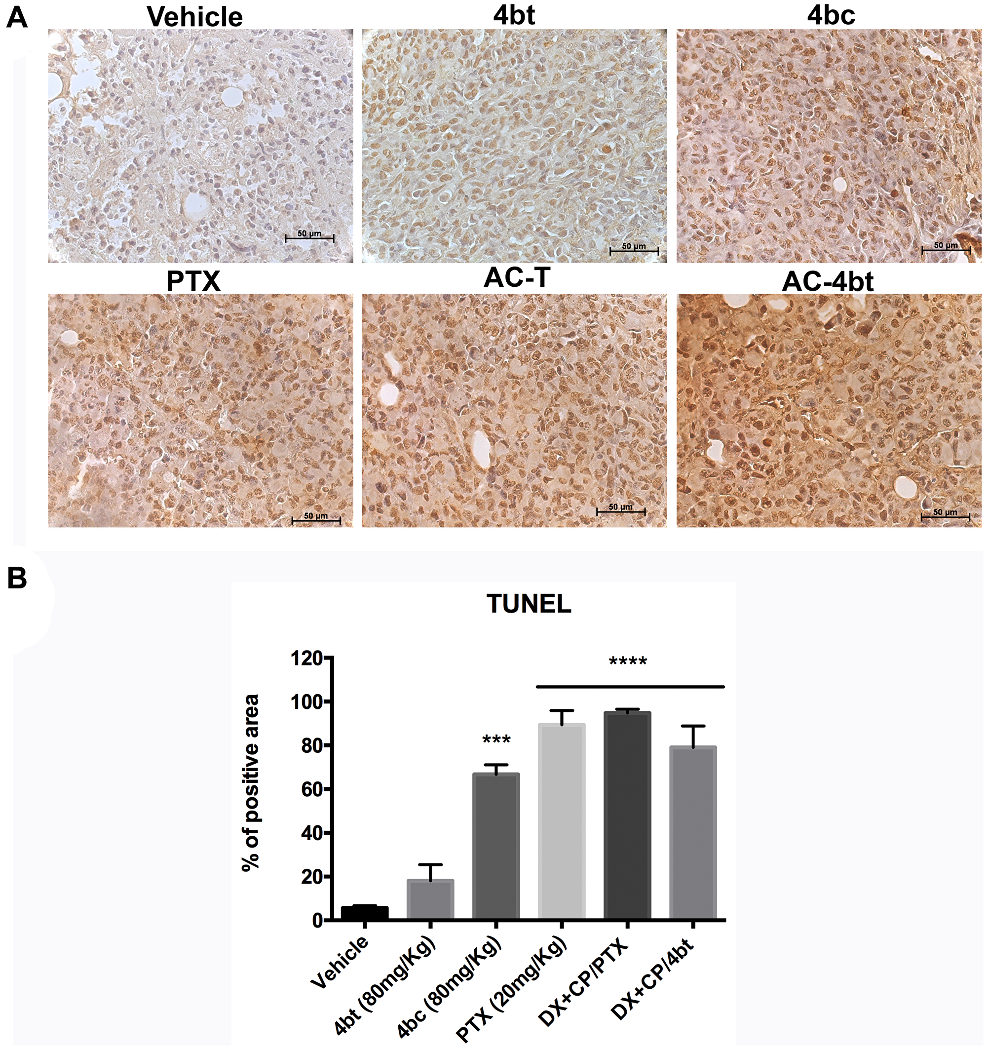 TUNEL analysis for apoptosis detection in tumor sections of xenografted Balb-c/nude mice.