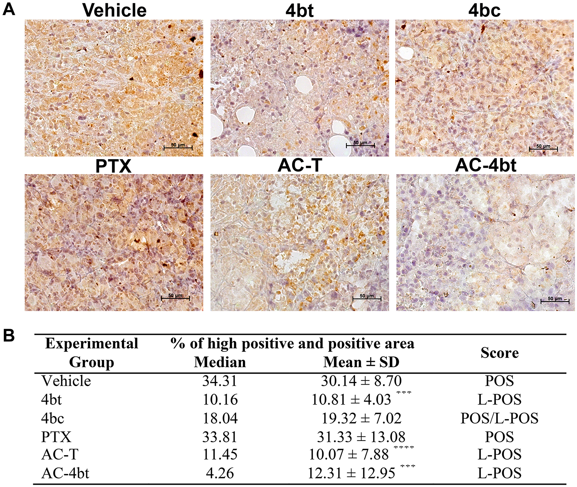 ALDH1-A1 expression analysis in tumor sections of xenografted Balb-c/nude mice.