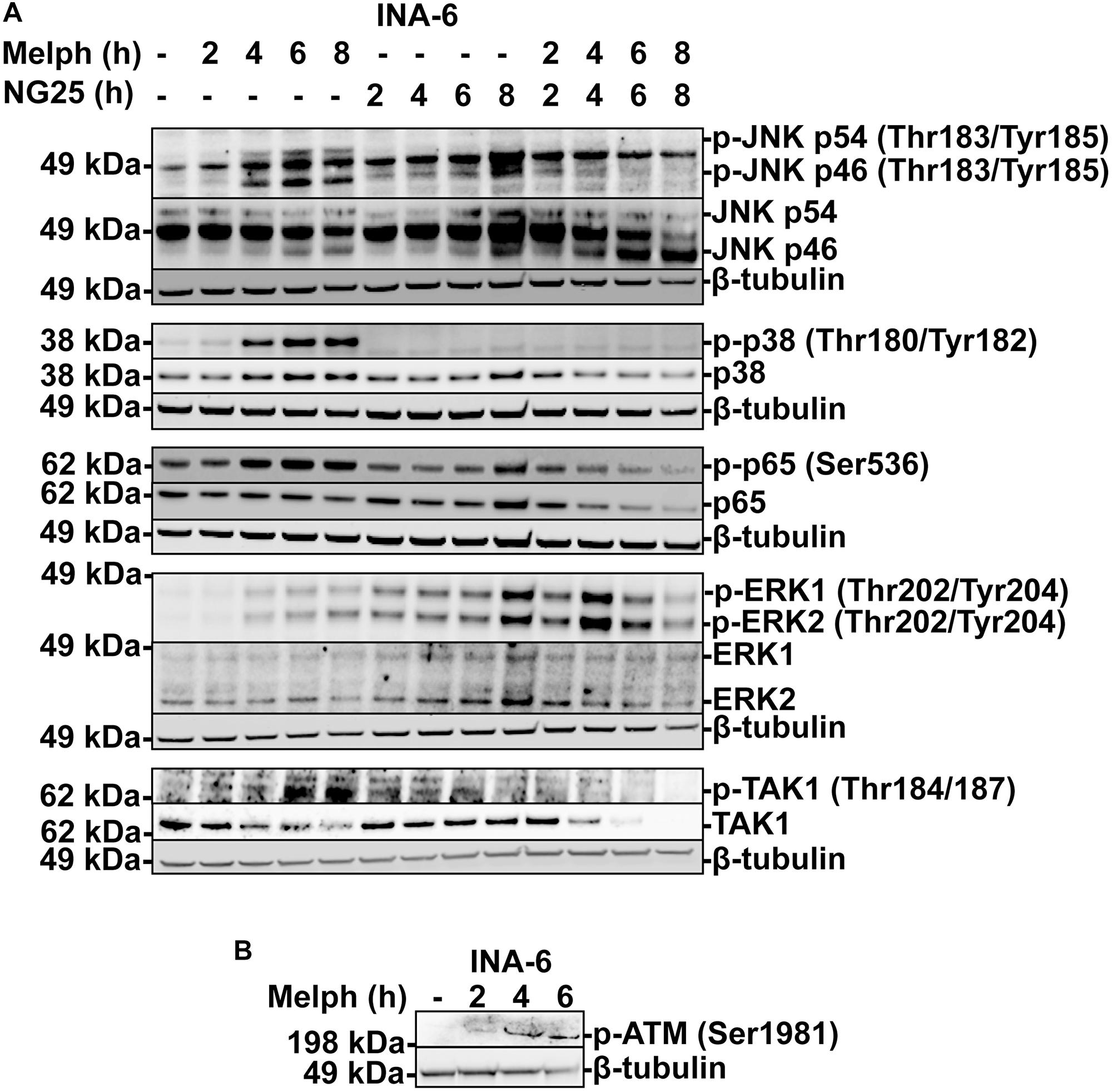 NG25 blocks melphalan-induced p38, ERK- and NF-κB signaling.