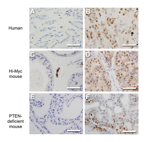 ERα expression increases in prostate cancer.