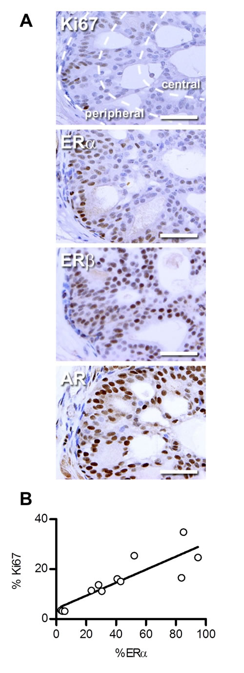 ERα expression correlates with proliferation in PTEN-deficient prostate cancer.