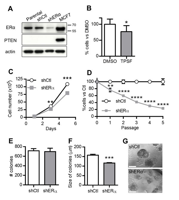 ERα knockdown inhibits the growth of PTEN-deficient prostate cancer cells.