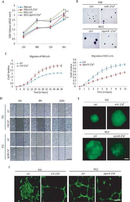 miR-27a*/Fbxo45/EMT-TFs axis controls EMT initiation and cancer progression.