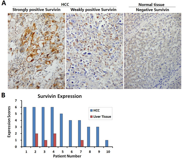 Identification of Survivin expression in HCC specimens