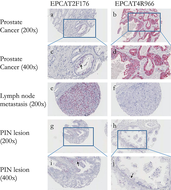 In situ hybridization of two EPCATs in prostate cancer tissues.