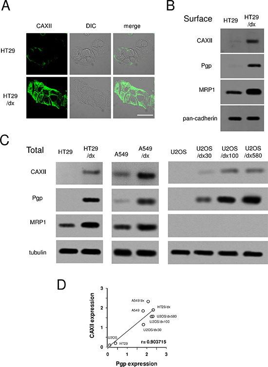 Expression of CAXII in chemosensitive and chemoresistant human cancer cells.