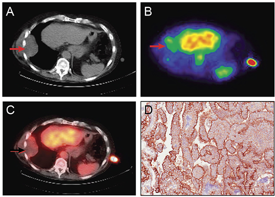 Representative images showing tumor localization of 111In amatuximab and tumor expression of mesothelin in a 70 year old man with mesothelioma.