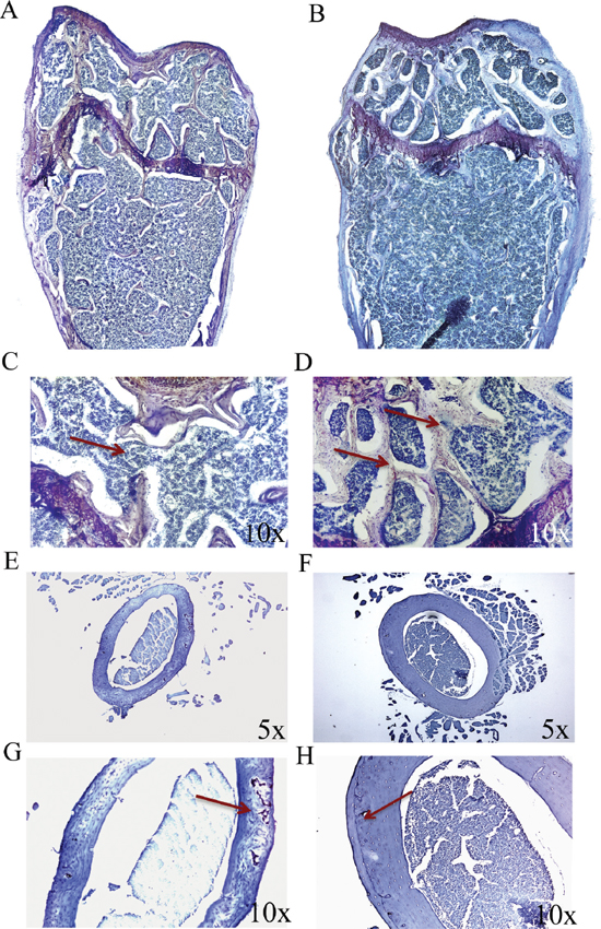 p62 DNA rescues osteoporosis.