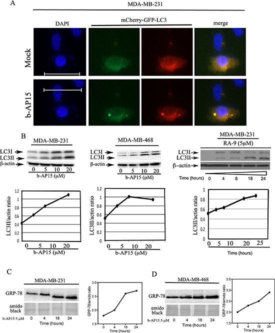 Inhibition of proteasome-associated DUBs induces ER stress responses and onset of autophagy in TNBC cells.
