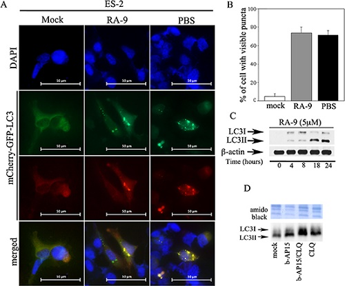 Inhibition of proteasome-associated DUBs induces autophagic flux in cancer cells.