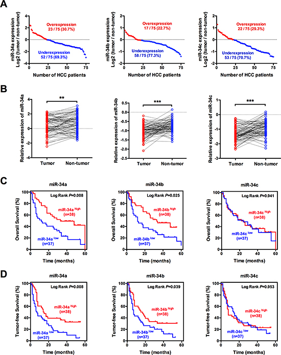 miR-34 family is frequently down-regulated in HCC and associates with poor prognosis.