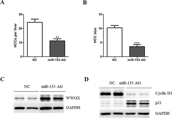 Systematic administration of MicroRNA-153 suppresses HCC development in C57BL/6 mice.