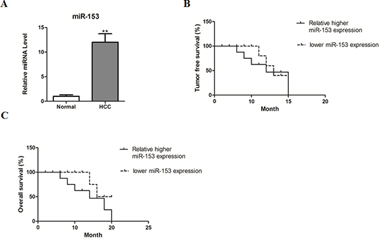 MicroRNA-153 correlates with poor survival of HCC patients.