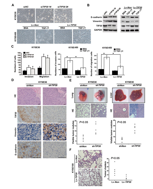 TIP30 inhibited TGF-β1-induced EMT and tumor metastasis.
