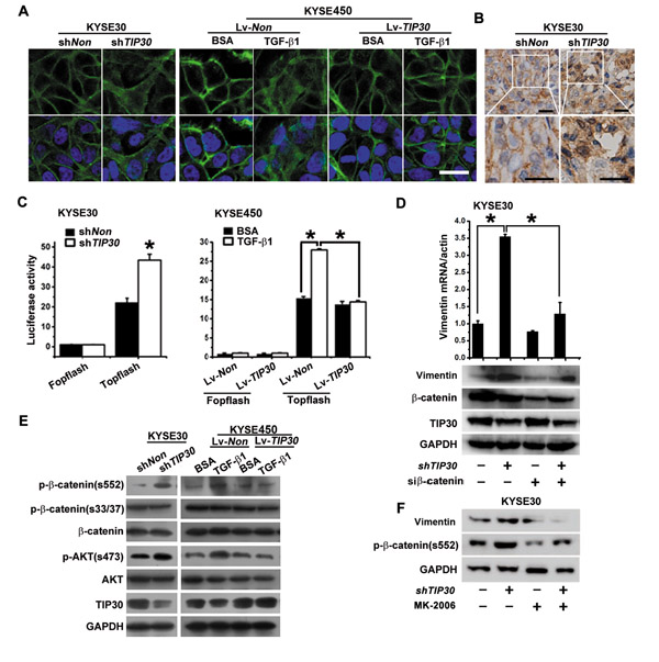 TIP30 blocked β-catenin signaling activated by TGF-β1.