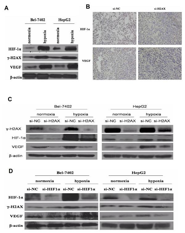 Figure4: γ-H2AX is essential for HIF-1α-mediated VEGF expression.