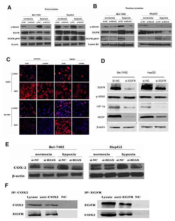 γ-H2AX regulates VEGF and HIF-1α correlated with COX2/EGFR.