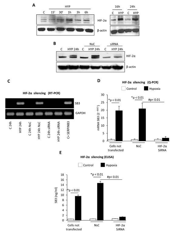Hypoxia-dependent SERPINB3 (SB3) up-regulation involves HIF-2α.