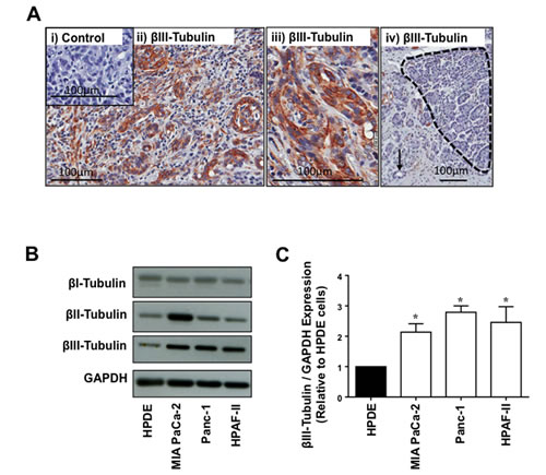 FIGURE 1: βIII-tubulin expression in PDA patient tissue and PDA cell lines.