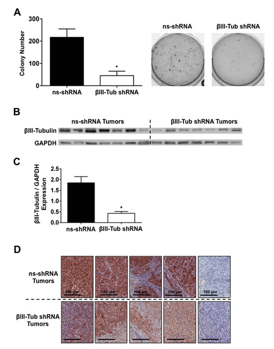 FIGURE 7: βIII-tubulin shRNA expressing MiaPaCa-2 cells have reduced anchorage-independent growth and potent long-term βIII-tubulin knockdown
