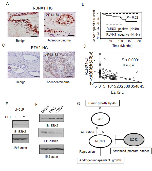 RUNX1 expression is negatively associated with EZH2 expression and loss of RUNX1 indicates a poor prognosis for prostate cancer patients.