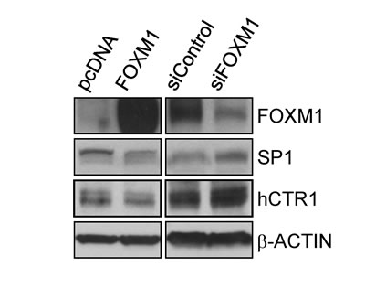 FOXM1 downregulates the expression of SP1 and hCTR1.