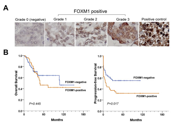 FOXM1 expression correlates with tumor progression and patient survival.