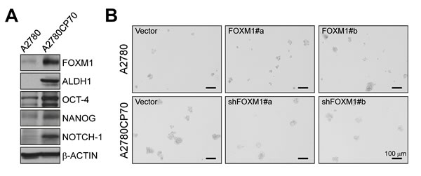 Effects of FOXM1 on stemness in the paired ovarian cancer cell lines A2780 and A2780CP70.