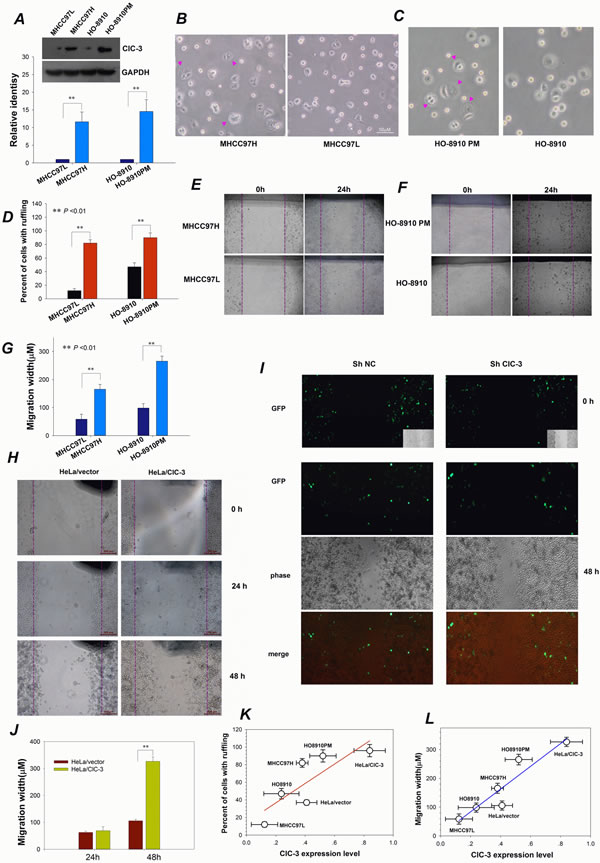 ClC-3-mediated Membrane Ruffling Is Related to Cancer Cell Migration.