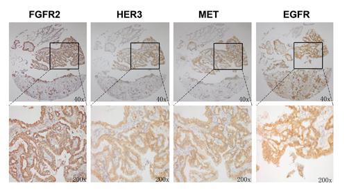 FGFR2 positive tumors showed copositivity of enriched drug resistance related RTKs.