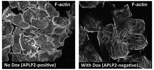 APLP2 down-regulation alters the morphology of the actin cytoskeleton.