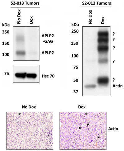 Tumors from mice implanted with S2-013-APLP2-shRNA orthotopic pancreatic tumors and then given Dox had a lower amount of actin monomers, but had an increased level of high molecular weight, covalently linked complexes containing actin.