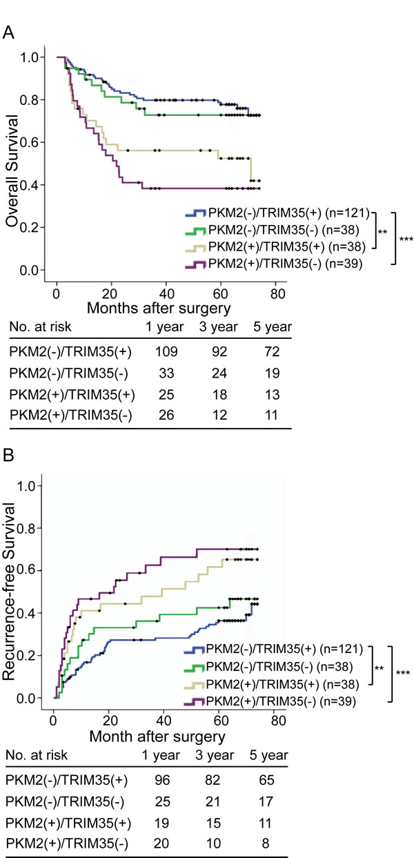 Combined influence of PKM2 and TRIM35 dimorphisms on risk of HCC death and recurrence.