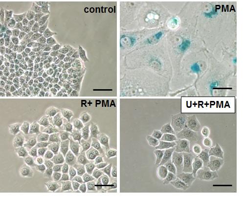 Effects of rapamycin plus U0126 on senescent morphology.