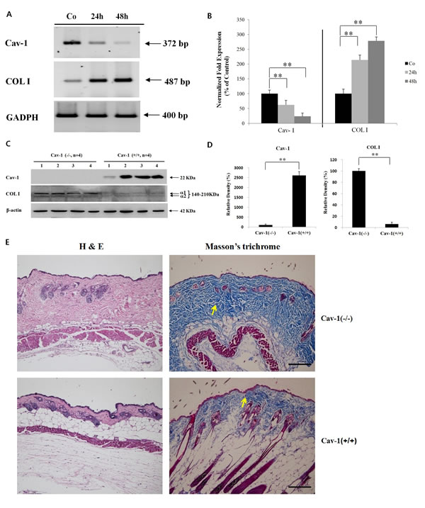 Cav-1 suppression leads to the up-regulated expression of COL I in the HDFs or skin.
