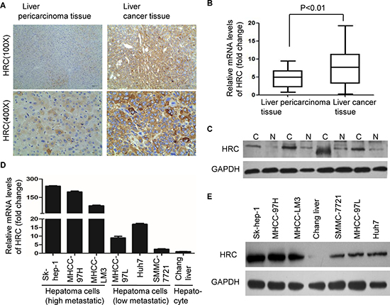 Overexpression of HRC in HCC tissues and metastatic HCC cells.