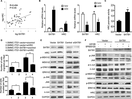 SATB1 induced HRC expression in HCC cells through JNK/c-Jun signal pathway.