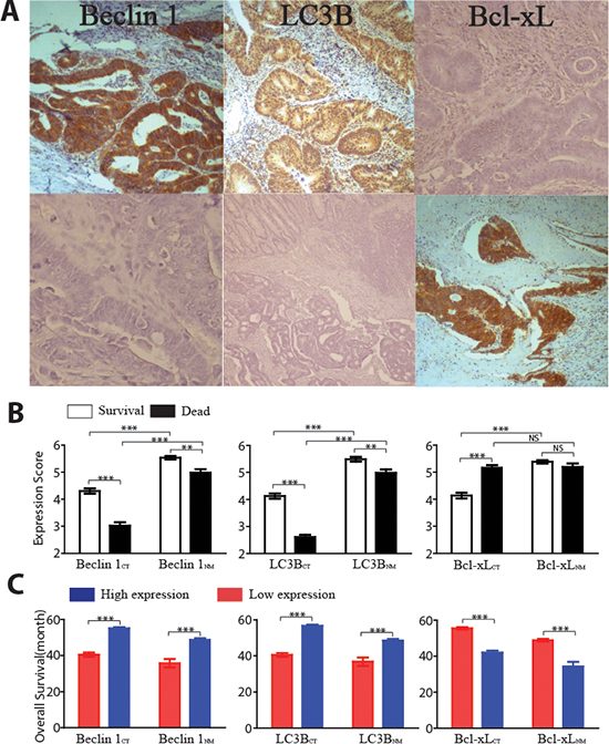 Overall survivals and expression of three autophagic proteins in both the center of tumor (CT) area and noncancerous mucosal (NM) region.