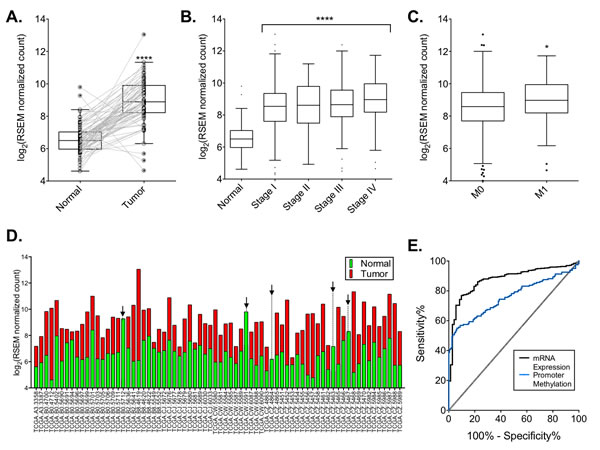 DCLK1 mRNA is overexpressed in the TCGA's clear cell RCC RNA-seq dataset.