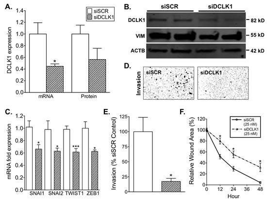 siRNA-mediated knockdown of DCLK1 reduces EMT factor expression, migration, and invasion in RCC cells.