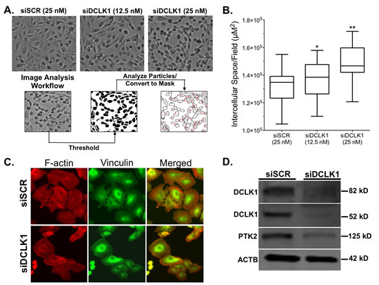 siRNA-mediated knockdown of DCLK1 reduces cell adhesion in RCC cells.