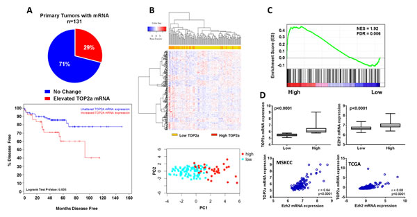 Increased Top2a expression selects for aggressive human prostate cancer and positively correlates with increased histone methlytransferase expression, Ezh2.