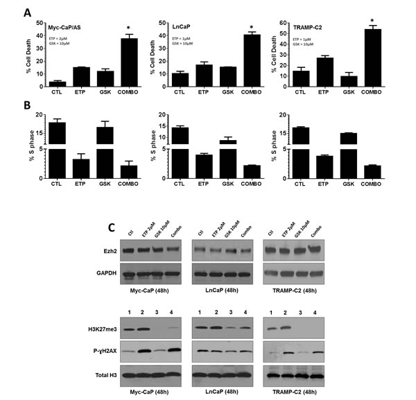 Inhibition of Top2 and Ezh2 in combination increases anti-tumor response in murine and human models of prostate cancer.