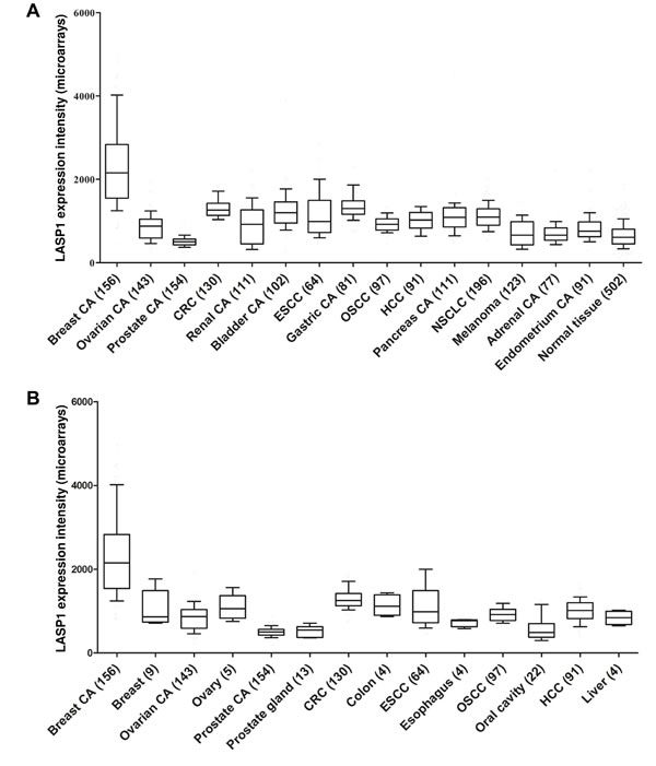 Gene expression patterns of LASP1 in human carcinoma tissues: