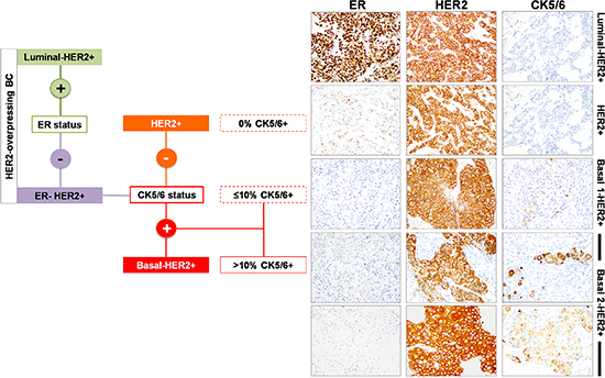 Immunophenotypic classification of HER2-overexpressing breast carcinomas.